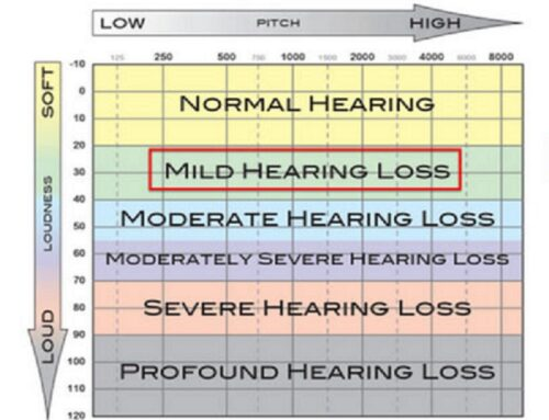 MILD HEARING LOSS – WHAT DOES IT MEAN?